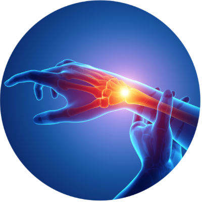 colorful skeletal depiction of the wrist